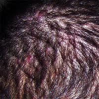 scalp acne